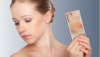 Gereizte Haut im Winter – was tun?