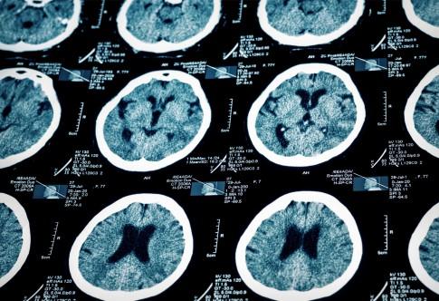 Neues Mittel Souvenaid soll Fortschritt von Alzheimer bremsen