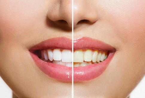 Was man gegen gelbe Zähne tun kann
